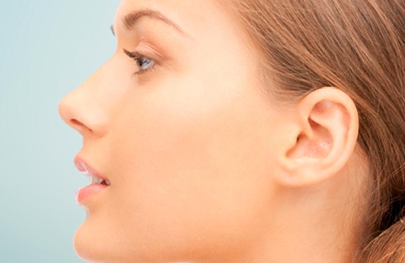Cirugía de nariz – Rinoplastia