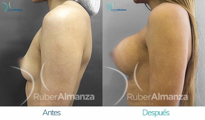 antes-y-despues-mamoplastia-de-aumento-ruber-almanza-bogota-colombia-lbg-lateral-izquierdo