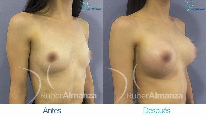 antes-y-despues-mamoplastia-de-aumento-ruber-almanza-bogota-colombia-mac-diagonal-derecho