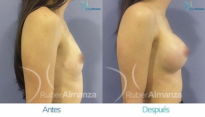 antes-y-despues-mamoplastia-de-aumento-ruber-almanza-bogota-colombia-mac-lateral-derecho
