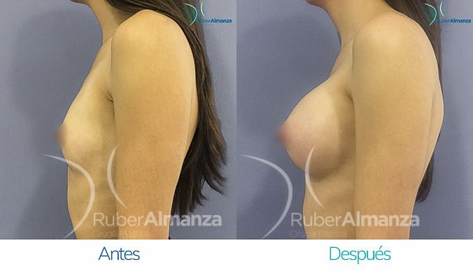 antes-y-despues-mamoplastia-de-aumento-ruber-almanza-bogota-colombia-mac-lateral-izquierdo