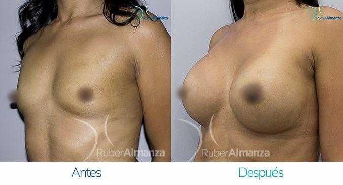 antes-y-despues-mamoplastia-de-aumento-ruber-almanza-bogota-colombia-nc-diagonal-izquierdo