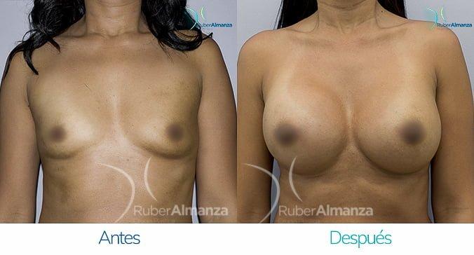 antes-y-despues-mamoplastia-de-aumento-ruber-almanza-bogota-colombia-nc-frontal