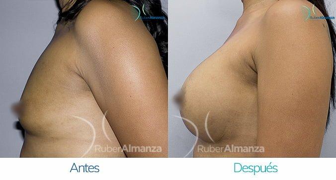 antes-y-despues-mamoplastia-de-aumento-ruber-almanza-bogota-colombia-nc-lateral-izquierdo