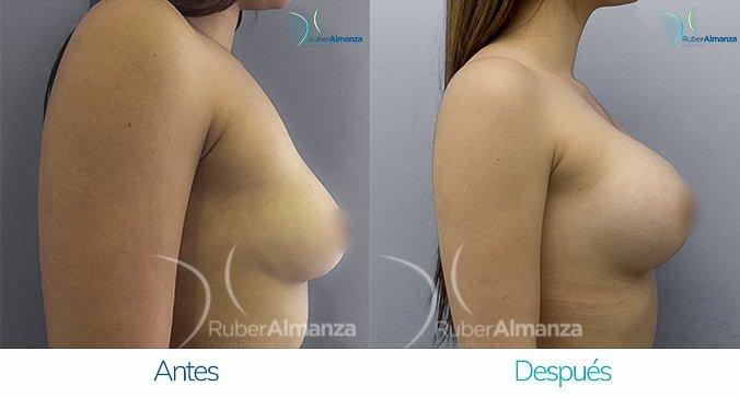 antes-y-despues-mamoplastia-de-aumento-ruber-almanza-bogota-colombia-ng-lateral-derecho