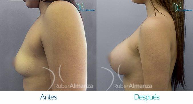 antes-y-despues-mamoplastia-de-aumento-ruber-almanza-bogota-colombia-ng-lateral-izquierdo