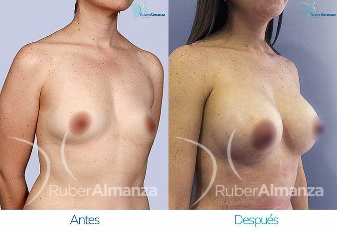 antes-y-despues-mamoplastia-de-aumento-ruber-almanza-bogota-colombia-tl-diagonal-derecho