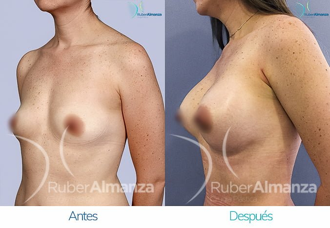 antes-y-despues-mamoplastia-de-aumento-ruber-almanza-bogota-colombia-tl-diagonal-izquierdo