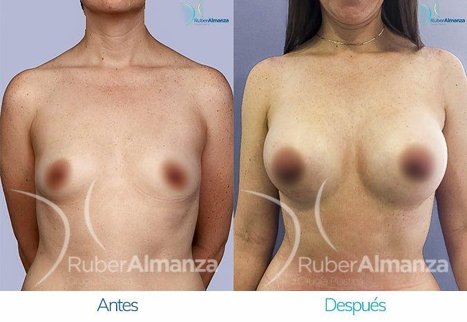 antes-y-despues-mamoplastia-de-aumento-ruber-almanza-bogota-colombia-tl-frontal