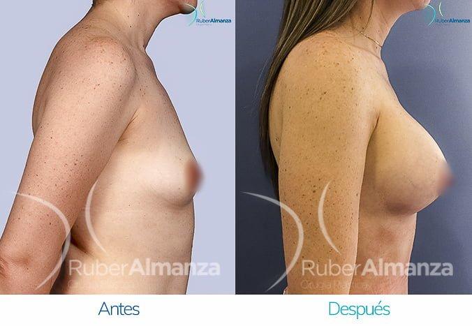 antes-y-despues-mamoplastia-de-aumento-ruber-almanza-bogota-colombia-tl-lateral-derecho