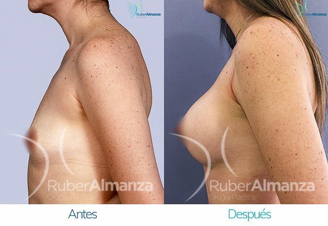 antes-y-despues-mamoplastia-de-aumento-ruber-almanza-bogota-colombia-tl-lateral-izquierdo