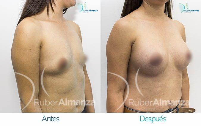 antes-y-despues-mamoplastia-de-aumento-ruber-almanza-bogota-jm-diagonal-derecho