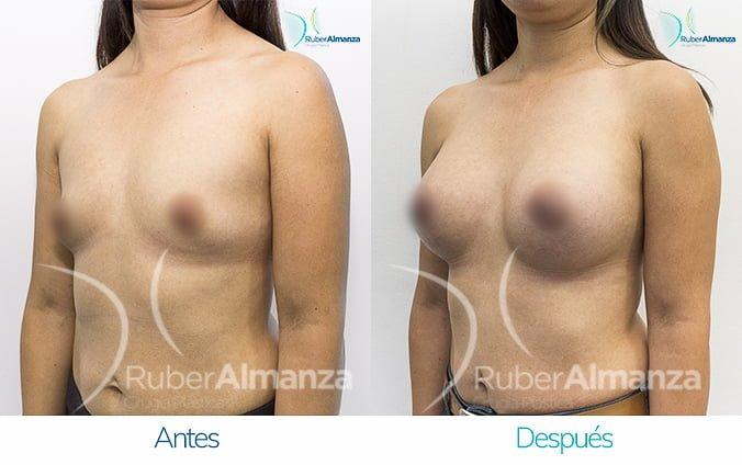 antes-y-despues-mamoplastia-de-aumento-ruber-almanza-bogota-jm-diagonal-izquierdo