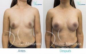 antes-y-despues-mamoplastia-de-aumento-ruber-almanza-bogota-jm-frontal
