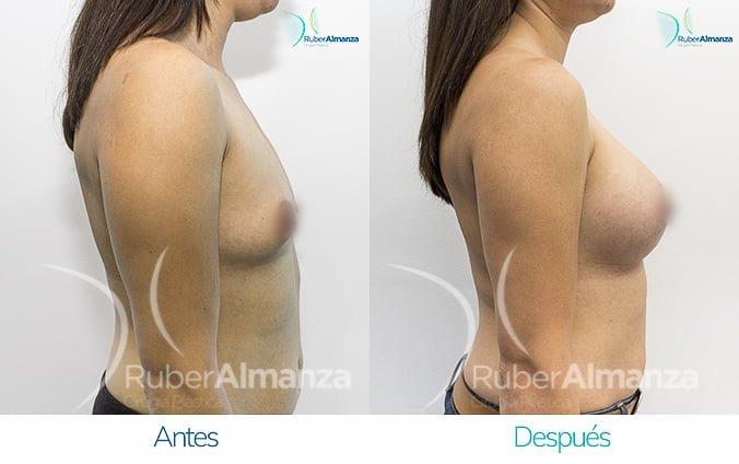 antes-y-despues-mamoplastia-de-aumento-ruber-almanza-bogota-jm-lateral-derecho