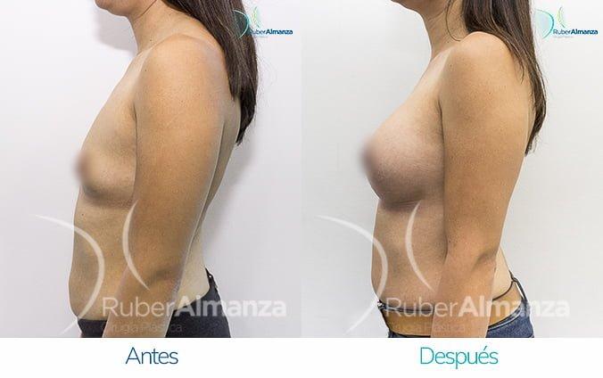 antes-y-despues-mamoplastia-de-aumento-ruber-almanza-bogota-jm-lateral-izquierdo