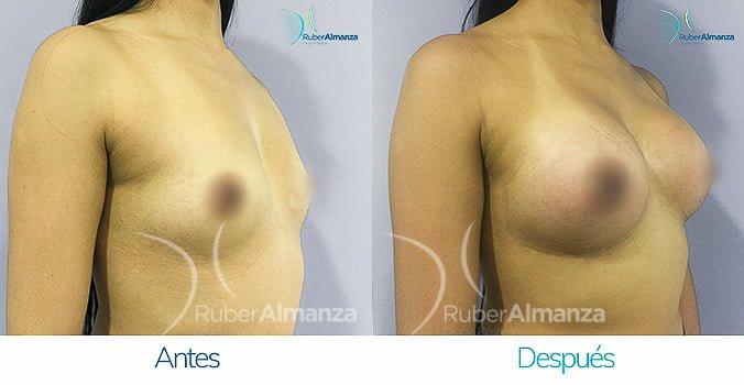 antes-y-despues-mamoplastia-ruber-almanza-bogota-colombia-gmt-diagonal-derecho