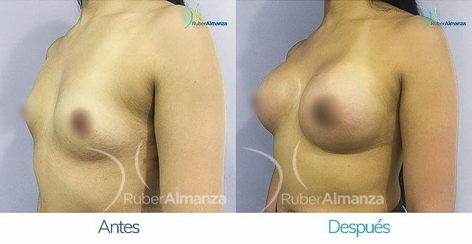 antes-y-despues-mamoplastia-ruber-almanza-bogota-colombia-gmt-diagonal-izquierdo