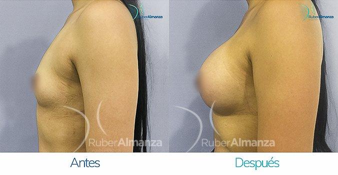 antes-y-despues-mamoplastia-ruber-almanza-bogota-colombia-gmt-lateral-izquierdo