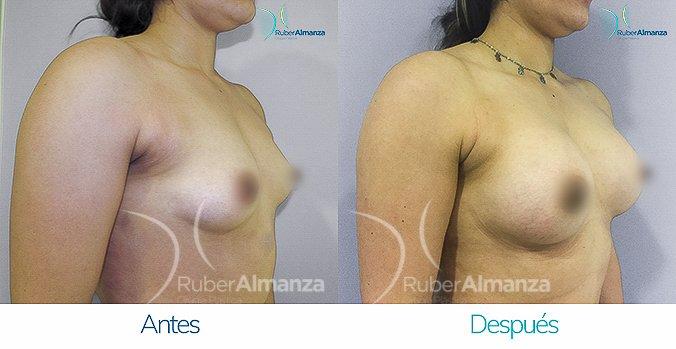 antes-y-despus-mamoplastia-de-aumento-ruber-almanza-bogota-colombia-ah-diagonal-derecho