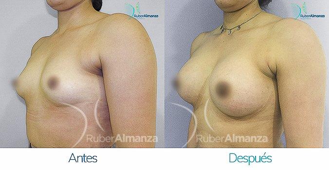 antes-y-despus-mamoplastia-de-aumento-ruber-almanza-bogota-colombia-ah-diagonal-izquierdo