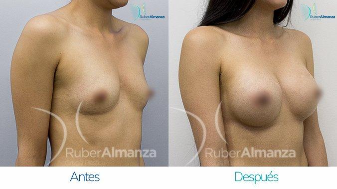 Mamoplastia Bogotá