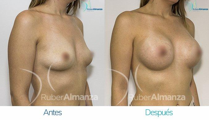 antes-y-despues-mamoplastia-de-aumento-ruber-almanza-bogota-colombia-mae-diagonal-derecho