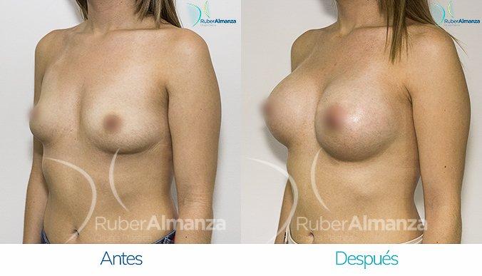 antes-y-despues-mamoplastia-de-aumento-ruber-almanza-bogota-colombia-mae-diagonal-izquierdo