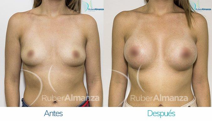 antes-y-despues-mamoplastia-de-aumento-ruber-almanza-bogota-colombia-mae-frontal