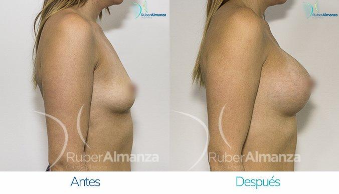 antes-y-despues-mamoplastia-de-aumento-ruber-almanza-bogota-colombia-mae-lateral-derecho