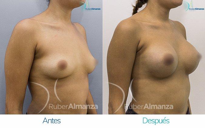 antes-y-despues-mamoplastia-de-aumento-ruber-almanza-bogota-colombia-nc-diagonal-derecho