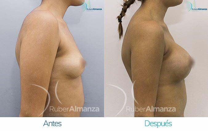 antes-y-despues-mamoplastia-de-aumento-ruber-almanza-bogota-colombia-nc-lateral-derecho