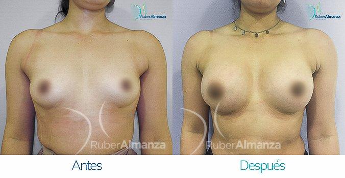 antes-y-despus-mamoplastia-ruber-almanza-bogota-colombia-ah-frontal