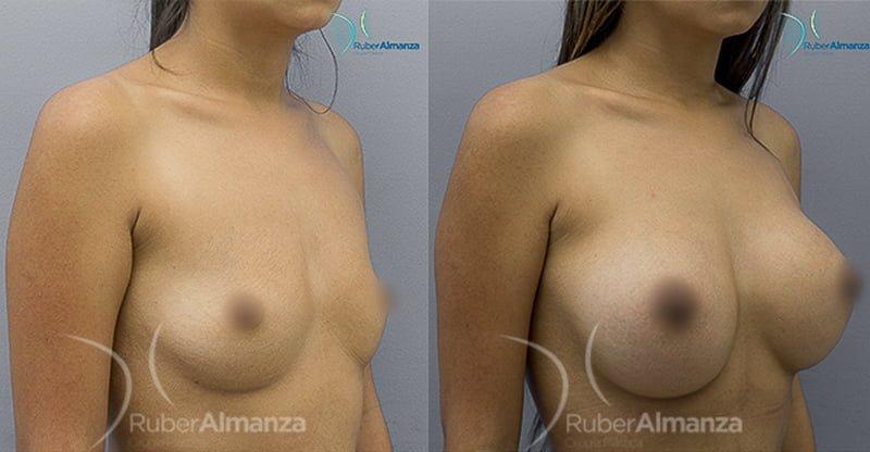 antes-y-despues-mamoplastia-de-aumento-ruber-almanza-bogota-colombia-cirujano-plastico