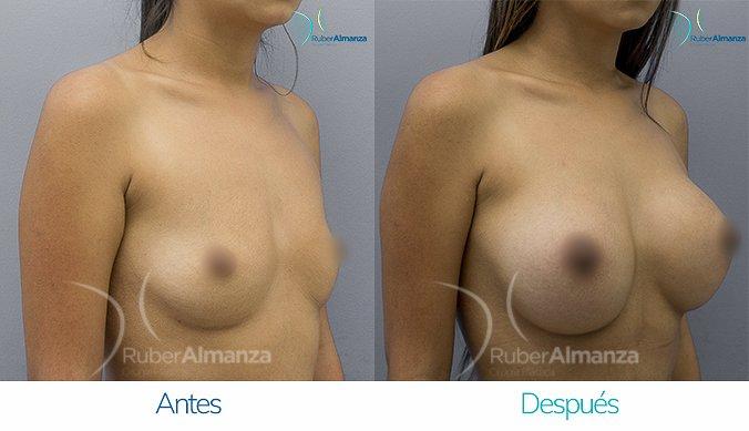antes-y-despues-mamoplastia-de-aumento-ruber-almanza-bogota-colombia-mtb-diagonal-derecho