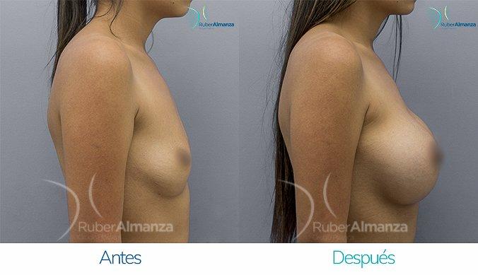 antes-y-despues-mamoplastia-de-aumento-ruber-almanza-bogota-colombia-mtb-lateral-derecho