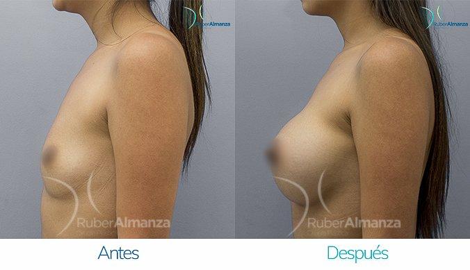 antes-y-despues-mamoplastia-de-aumento-ruber-almanza-bogota-colombia-mtb-lateral-izquierdo