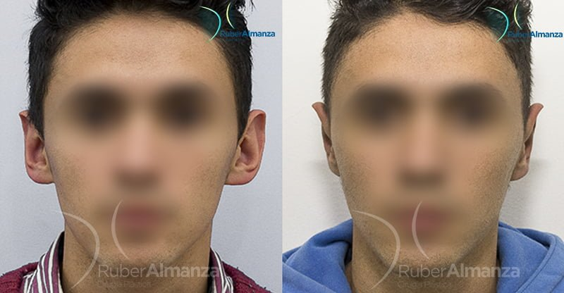 antes-y-despues-otoplastia-ruber-almanza-bogota-colombia-cirujano-plastico