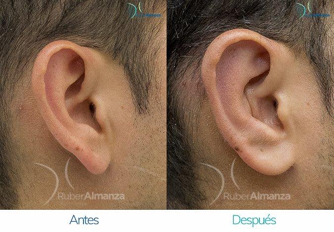 antes-y-despues-otoplastia-ruber-almanza-bogota-colombia-7-lateral-derecho