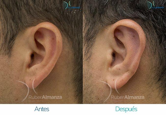 antes-y-despues-otoplastia-ruber-almanza-bogota-colombia-7-lateral-izquierdo