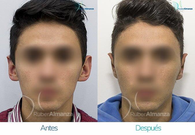 antes-y-despues-otoplastia-ruber-almanza-bogota-colombia-ag-frontal