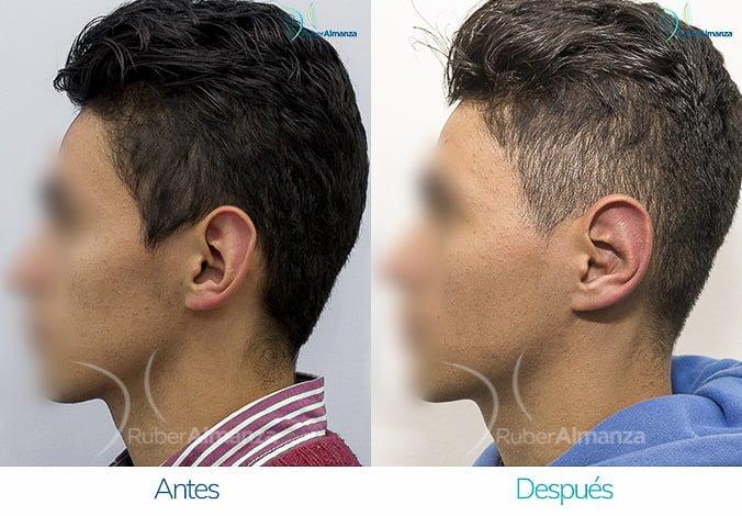 antes-y-despues-otoplastia-ruber-almanza-bogota-colombia-ag-lateral-izquierdo