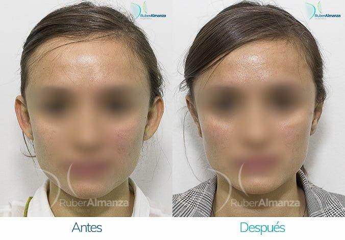 antes-y-despues-otoplastia-ruber-almanza-bogota-colombia-ama-frontal