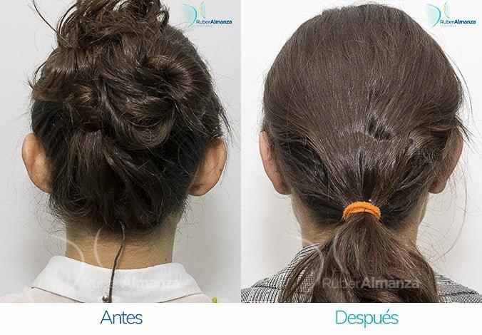 antes-y-despues-otoplastia-ruber-almanza-bogota-colombia-ama-posterior