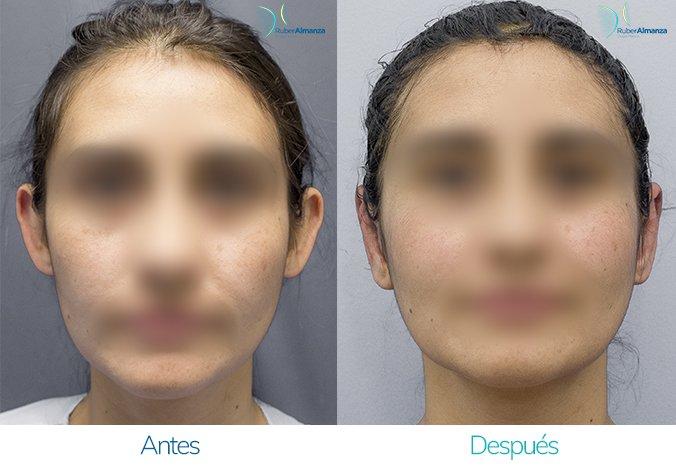 antes-y-despues-otoplastia-ruber-almanza-bogota-colombia-ar-frontal