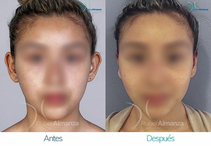 antes-y-despues-otoplastia-ruber-almanza-bogota-colombia-bm-frontal