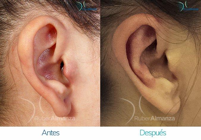antes-y-despues-otoplastia-ruber-almanza-bogota-colombia-bm-lateral-derecho