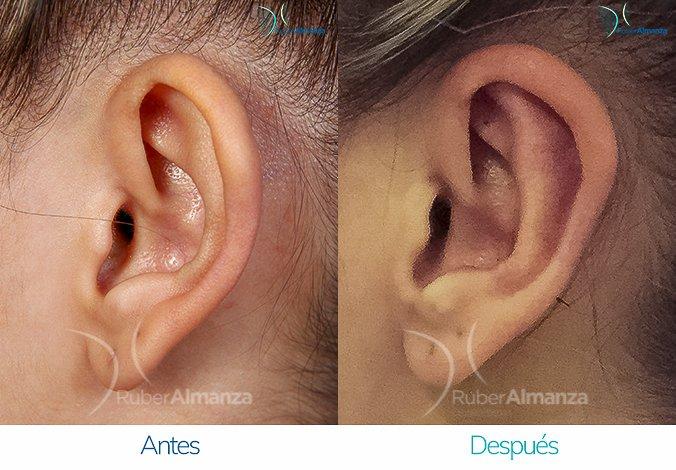 antes-y-despues-otoplastia-ruber-almanza-bogota-colombia-bm-lateral-izquierdo