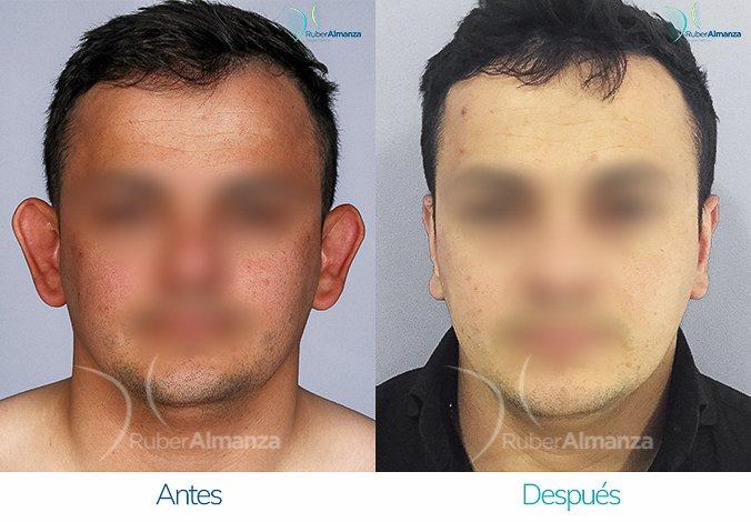 antes-y-despues-otoplastia-ruber-almanza-bogota-colombia-cs-frontal