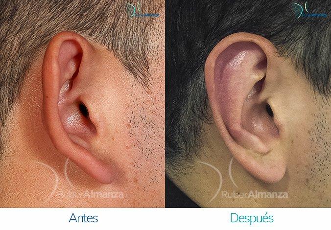 antes-y-despues-otoplastia-ruber-almanza-bogota-colombia-cs-lateral-derecho